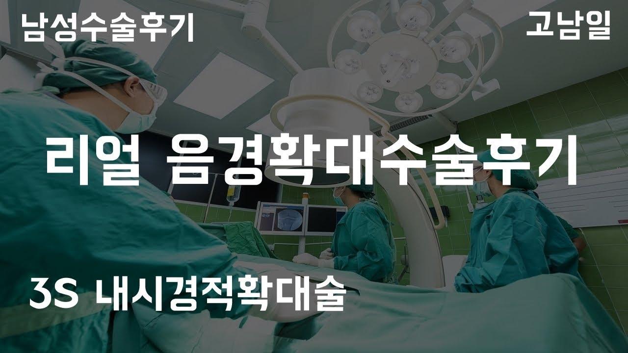 음경확대수술후기 3s 내시경적확대술 퍼스트비뇨기과 남성수술