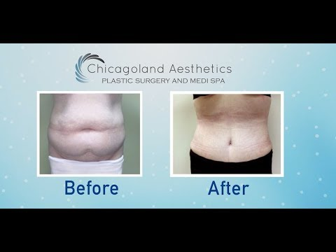 Liposuction 360 At Chicagoland Aesthetics | Plastic Surgery In Chicago