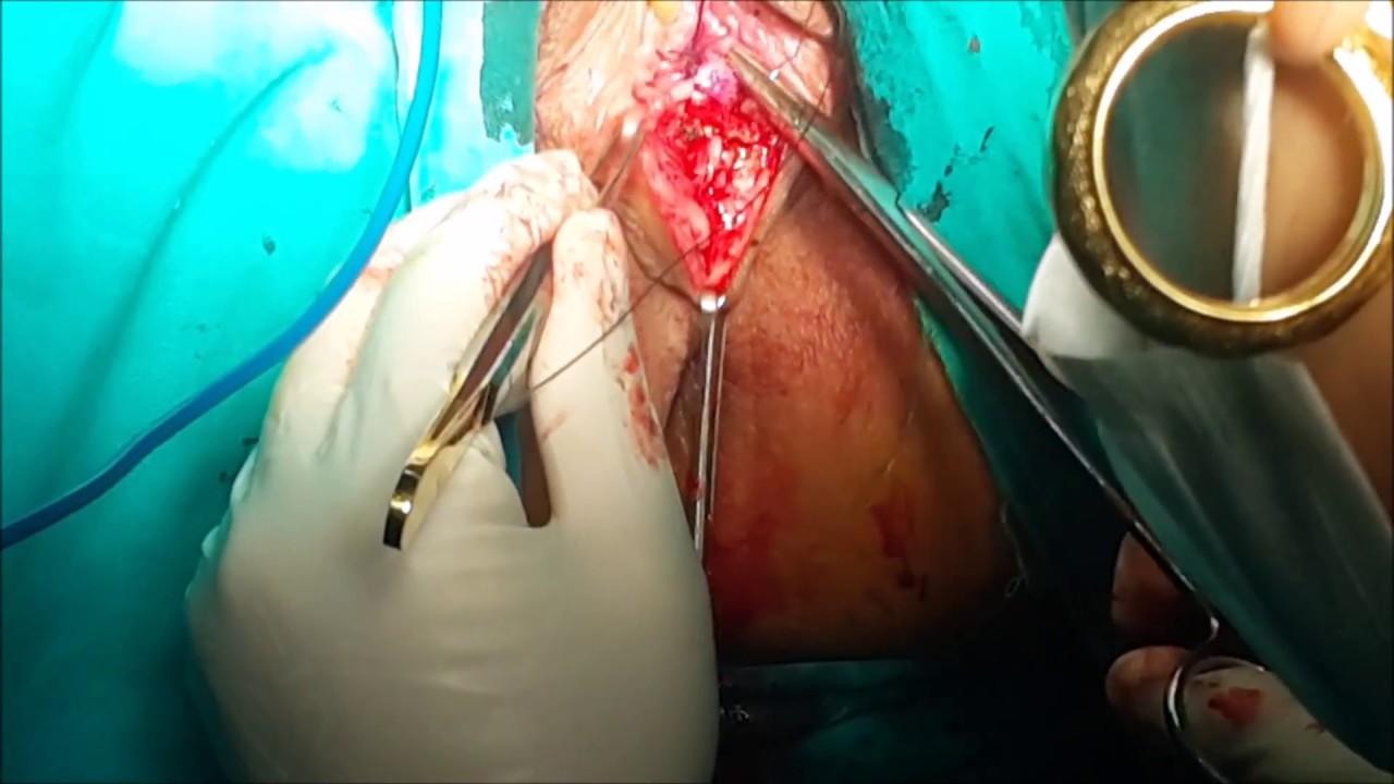 Vaginoplastika Aralığın doğuşdan sonrakı cırığına görə