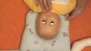 Лечение установочной кривошеи и синдрома короткой шеи у детей.