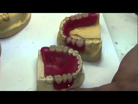 06 Temporary RPD setting teeth and waxup