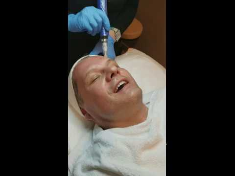 Micro Needling Treatment for Skin Wrinkles