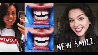 видео Эстетическая реставрация для идеальной улыбки