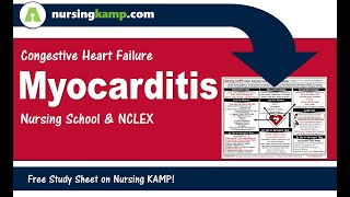 Nursing KAMP Myocarditis Infective Disease