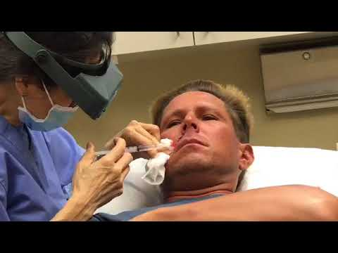 Mohs Surgery - Watch Basil Cell Carcinoma Skin Cancer Get Removed [GRAPHIC]