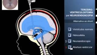Terceiroventriculostomia ou neurocirurgia endoscópica
