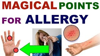 Sujok Therapy For Allergy/Sujok For Allergy/Acupressure For Allergy...