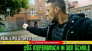 "Real-Life-Storys #5 ""Kieferbruch in der Schule""  | KAMPFKUNST LIFESTYLE"