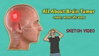 Brain Tumor Symptoms| ब्रेन ट्यूमर लक्षण, कारण और बचाव Full Detail in Hindi