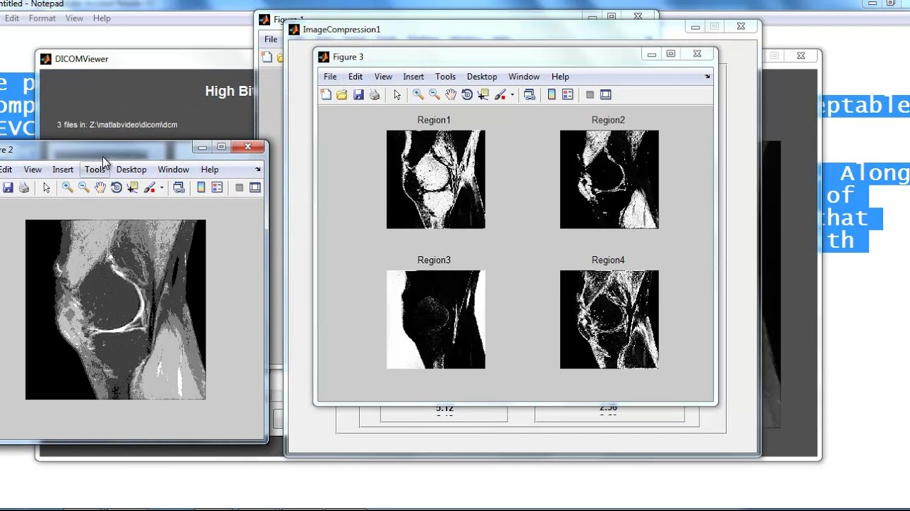 image processing project topics in matlab | image processing thesis topics  in matlab