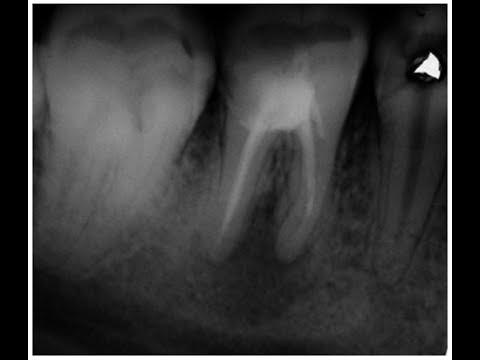 Киста зуба - что это такое? Киста на корне зуба: удаление
