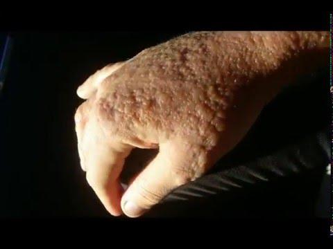 what's eczema skin