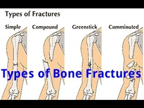 Types of Bone Fractures (Examville com Quick Review) - YouTube