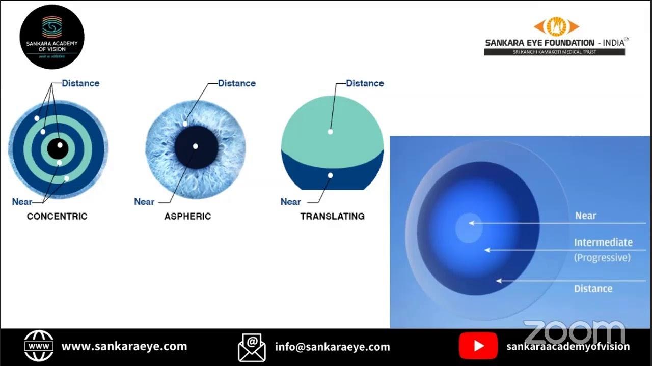Apec látás eszköz hogy jó legyen a látása
