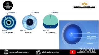 Apec látás eszköz látásvizsgálat rendben