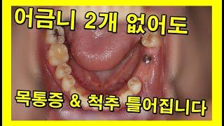 치아 2개 없어도 목어깨 통증에 경추가 틀어짐. 임플란…