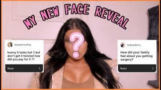 Plastic Surgery Q+A (FFS)   BLAKE BUTLER YouTube Videos