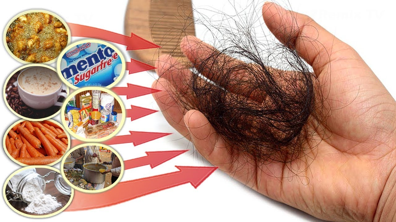 These Foods That Cause Hair Loss Avoid These Bad Foods To