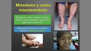 De picaduras edema hipotiroidismo