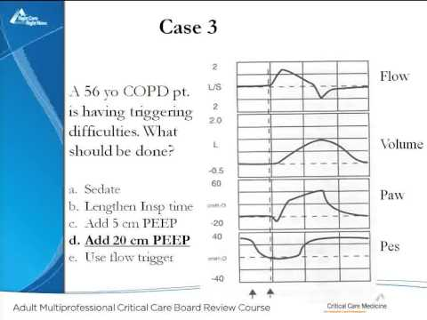 Problems in Mechanical Ventilation
