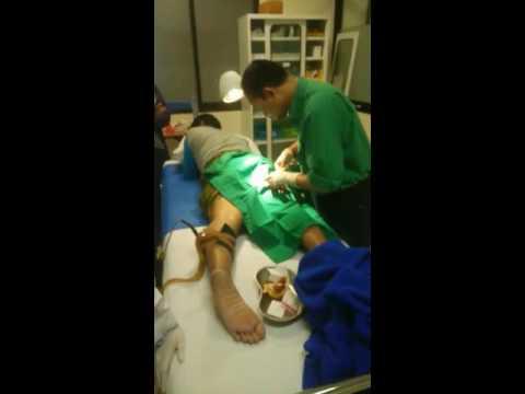 Operasi Uci uci