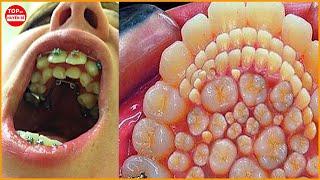 Đứa Trẻ Này Được Sinh Ra Với 300 Chiếc Răng Chen Chúc Nhau Trong Miệng | Top 10 Huyền Bí