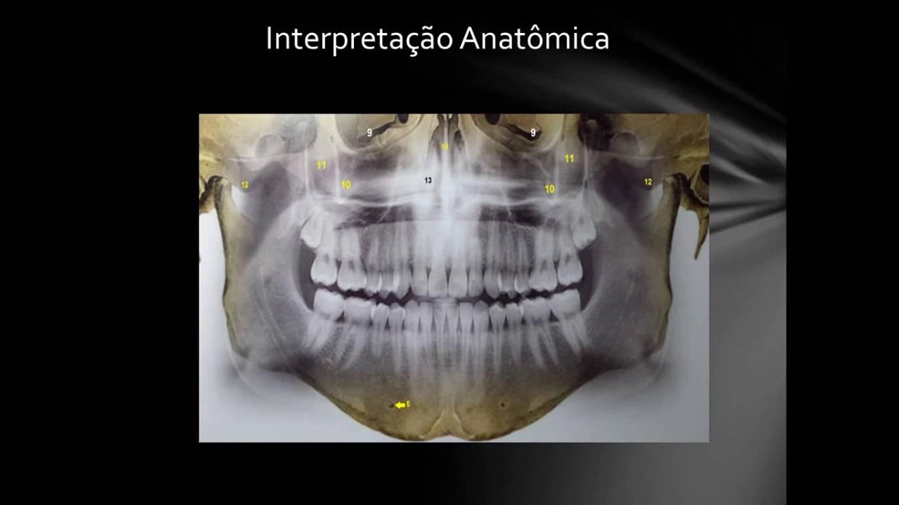 RADIOGRAFIA PANORAMICA - Interpretação Anatômica - YouTube