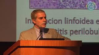 Autoinmune cansancio hepatitis