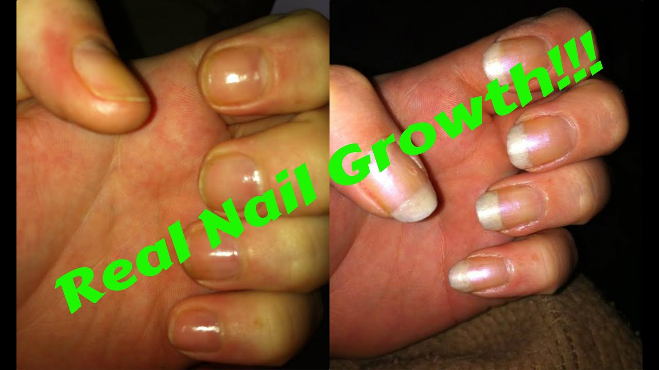 How To Grow Your Own Natural Nails Fast (No Joke With Proof/Ex Nail ...