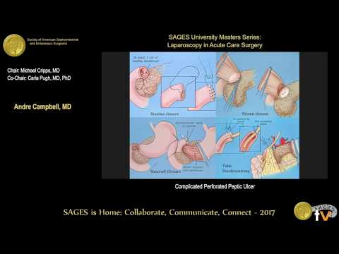 Surgical management of perforated peptic ulcer disease