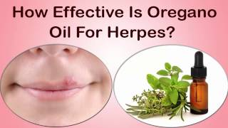 How Oregano Oil Helps To Cure Herpes? Natural Way To Cure Herpes(Herpes is a sexually transmitted disease caused by HSV(Herpes Simplex Virus). It mainly affects your genitals and skin in other patrs of the body. Many people ..., 2017-01-12T11:56:11.000Z)