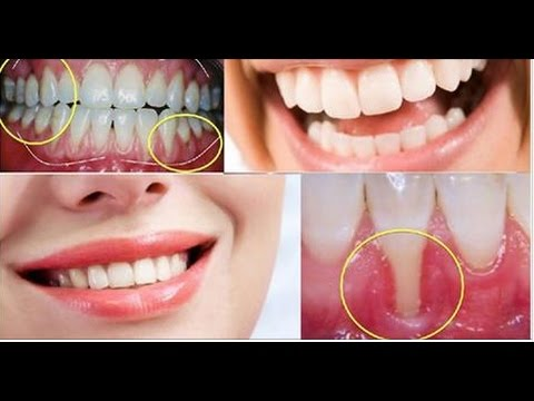 Can gum recession be reversed naturally