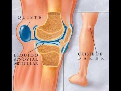 Quiste de baker o popliteo rodilla youtube - Dolor en la parte interior de la rodilla ...