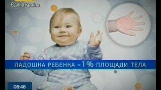 Термические Ожоги Малыша - Ранок - Інтер