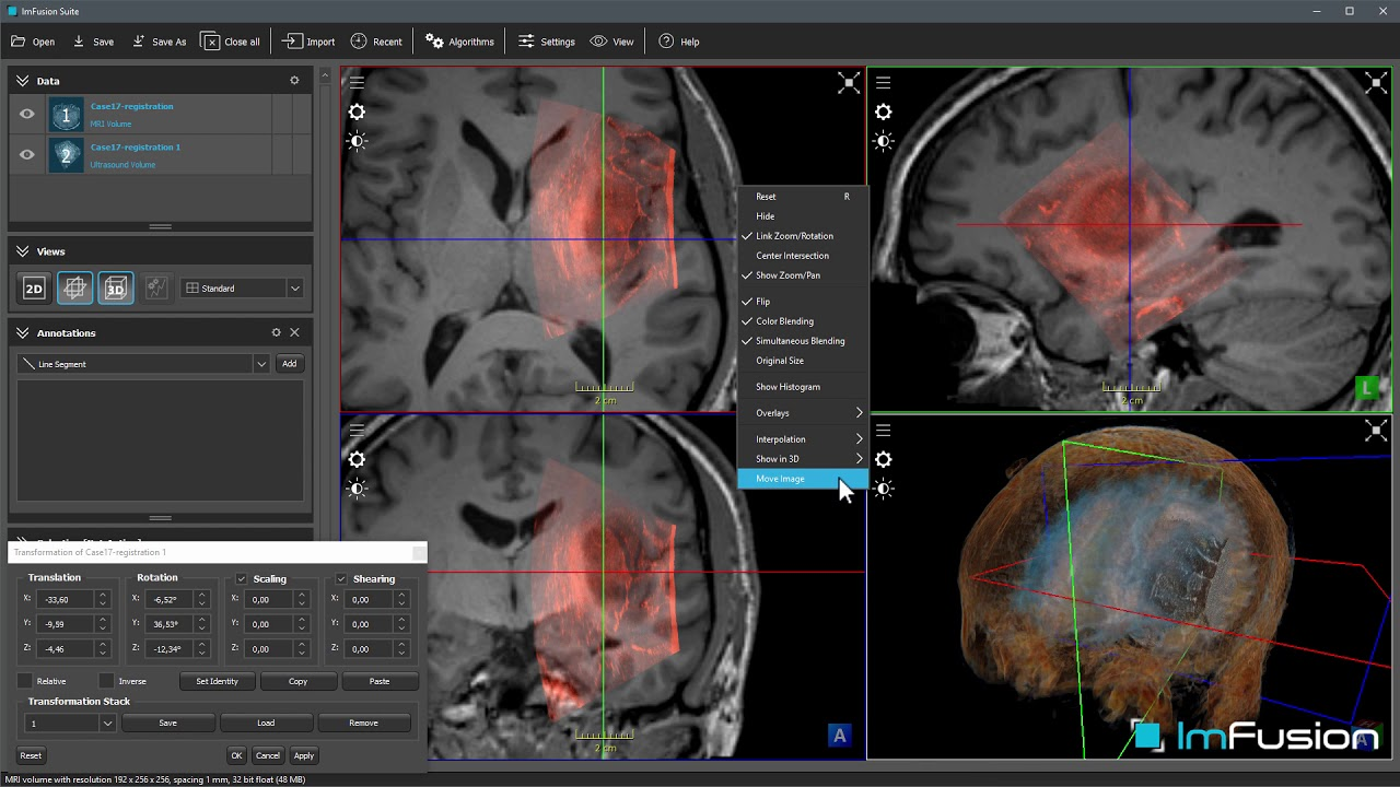 Multi-Modal Medical Image Registration using ImFusion Suite