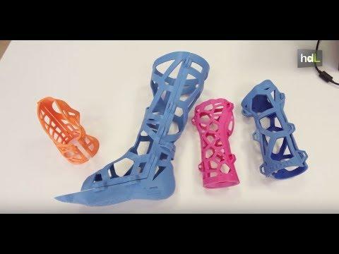 e5ede4df9 HDL Fiixit, férulas en 3D como alternativa a la escayola que agiliza la  rehabilitación en fracturas