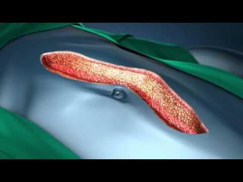 Области применения раневого орошения - система Блокатор Боли