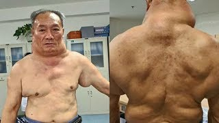 26 năm uống rượu, người đàn ông thành 'quái vật' với chiếc cổ kì dị
