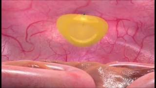 Umbilical Hernia Video