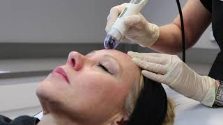 Dermafrac Microneedling with Deep Tissue Infusion thumbnail