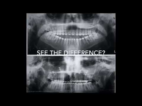 Jaw Surgery Disappointment from YouTube · Duration:  10 minutes 7 seconds