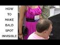How to Make Baldspot Invisible