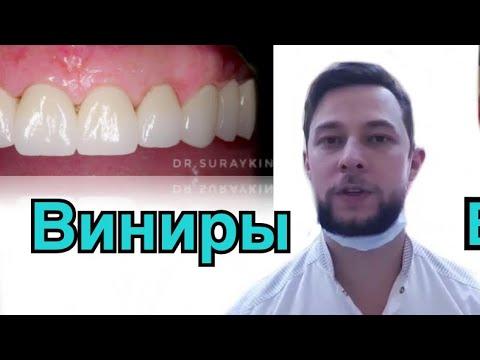 Какие бывают зубные виниры?