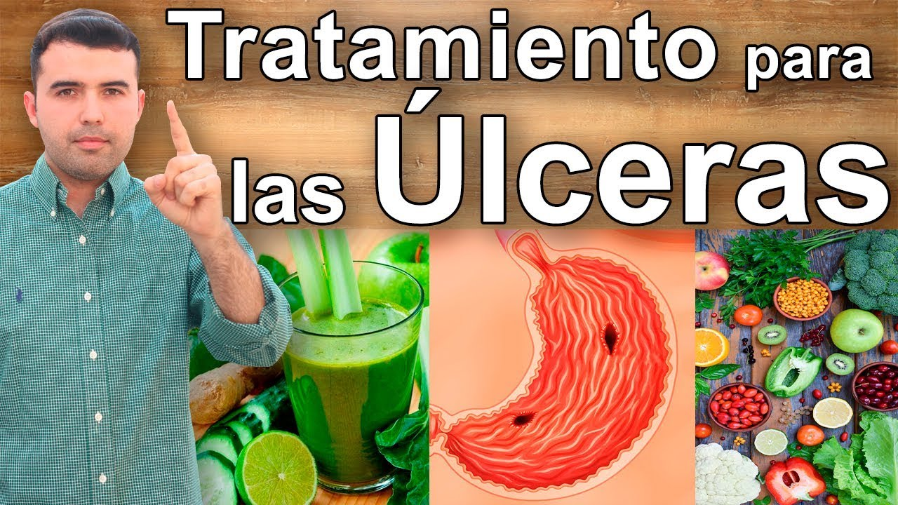 Como curar una ulcera gastrica naturalmente