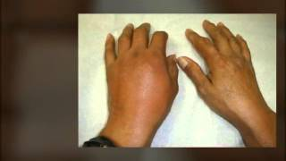 Download Gout Remedy Report - Natural Cures And Remedies. Gout Remedy Report For Pain