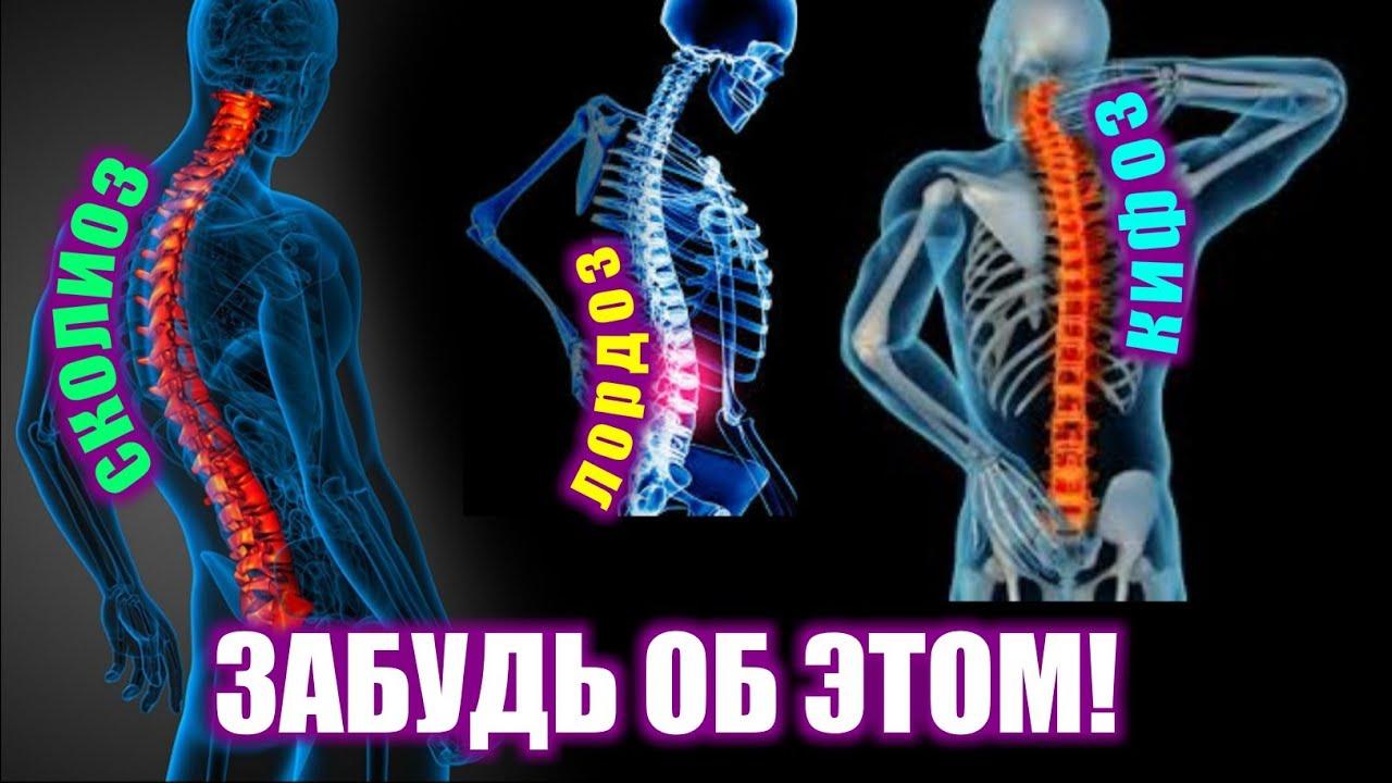 КАК ИСПРАВИТЬ КРИВИЗНУ ПОЗВОНОЧНИКА |ЛОРДОЗ, КИФОЗ И СКОЛИОЗ. (лечение и исправление осанки)