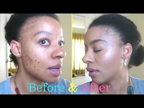 Quick Everyday Foundation Routine for Acne Scarring (No Color Correcting)| Swazi  YouTuber| 20/09/17