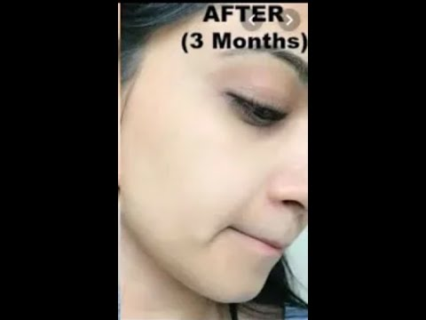 How to Brighten Skin, Reduce Acne Scars, Discoloration, Uneven skin tone | Home Remedies