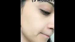 hqdefault - Uneven Skin Tone On Face From Acne