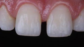 diastema closure with composite resin